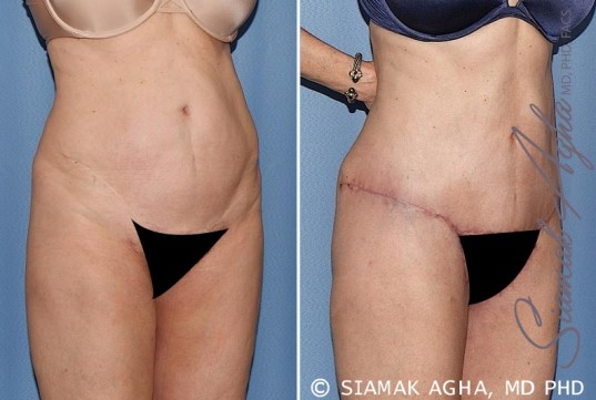 orange-county-tummy-tuck-patient-27-front-right