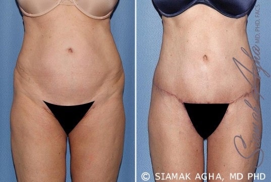 orange-county-tummy-tuck-patient-27-front