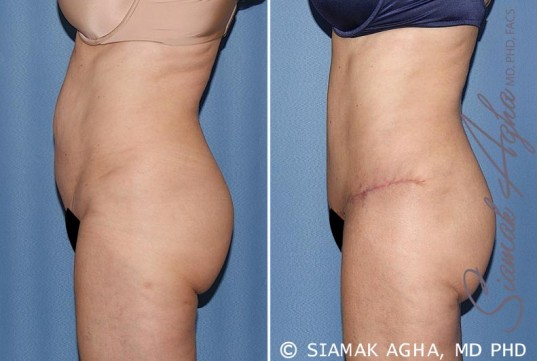 orange-county-tummy-tuck-patient-27-left