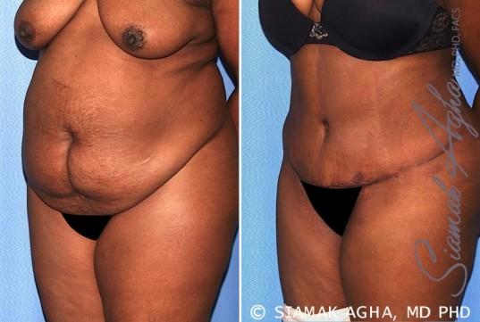 orange-county-tummy-tuck-patient-29-front-left
