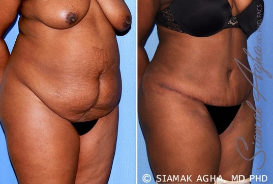 orange-county-tummy-tuck-patient-29-front-right
