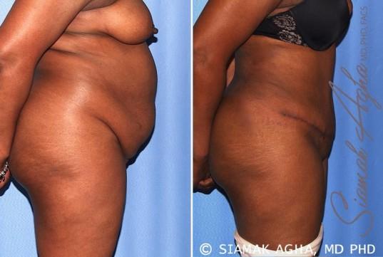 orange-county-tummy-tuck-patient-29-right