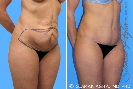 orange-county-tummy-tuck-patient-3-front-right