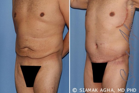orange-county-tummy-tuck-patient-33-front-left