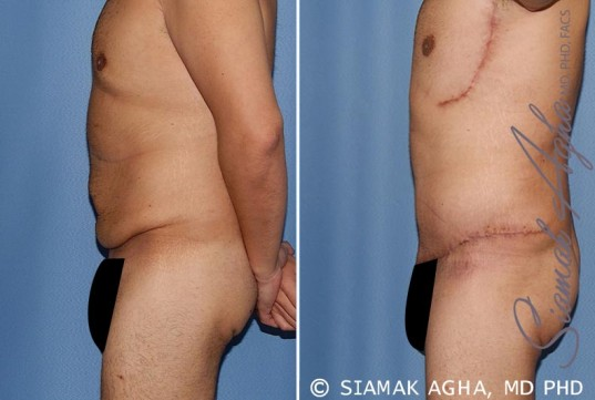 orange-county-tummy-tuck-patient-33-left