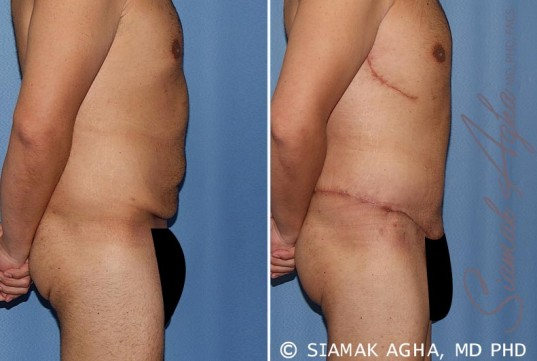 orange-county-tummy-tuck-patient-33-right