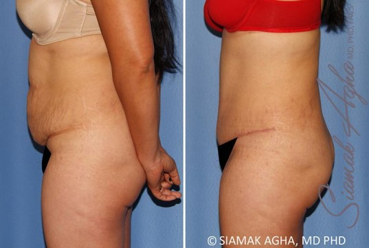 orange-county-tummy-tuck-patient-34-left-1