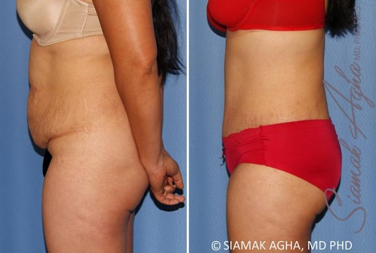orange-county-tummy-tuck-patient-34-left