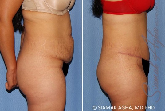 orange-county-tummy-tuck-patient-34-right-1