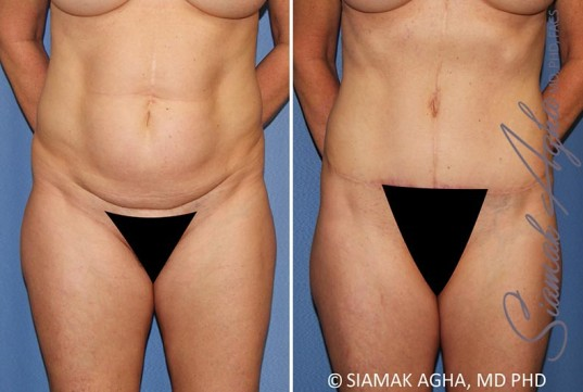 orange-county-tummy-tuck-patient-35-front
