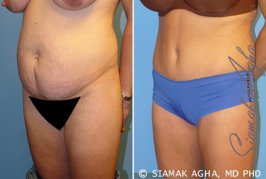 orange-county-tummy-tuck-patient-5-front-left