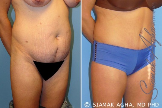 orange-county-tummy-tuck-patient-5-front-right