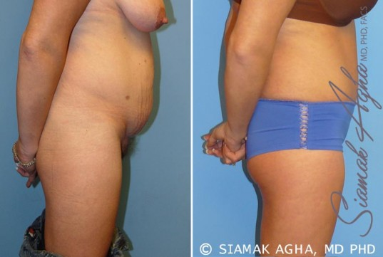 orange-county-tummy-tuck-patient-5-right
