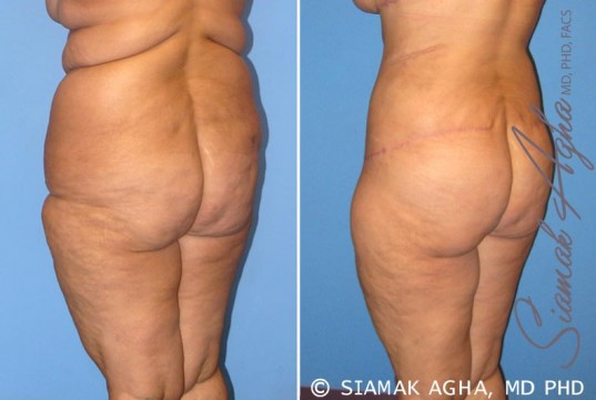 orange-county-tummy-tuck-patient-7-back-left