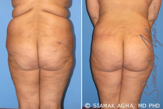 orange-county-tummy-tuck-patient-7-back