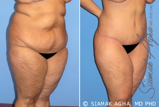 orange-county-tummy-tuck-patient-7-front-right