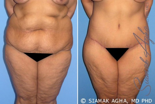 orange-county-tummy-tuck-patient-7-front