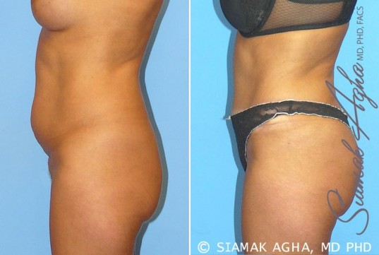 orange-county-tummy-tuck-patient-9-left