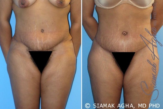 orange-county-tummy-tuck-revision-patient-1-front