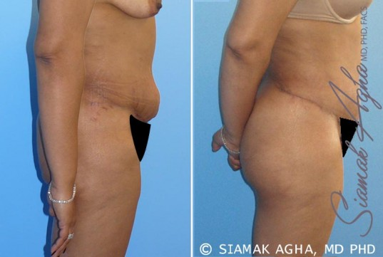 orange-county-tummy-tuck-revision-patient-1-right