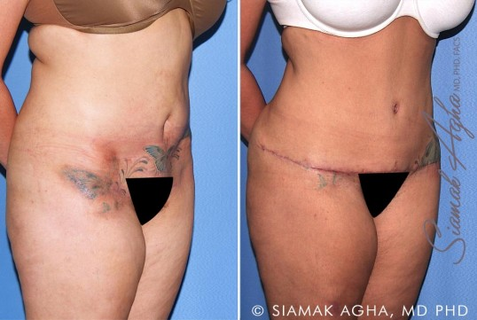 orange-county-tummy-tuck-revision-patient-10-front-right