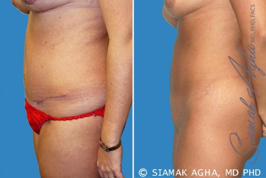 orange-county-tummy-tuck-revision-patient-2-left