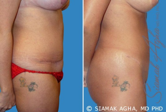 orange-county-tummy-tuck-revision-patient-2-right