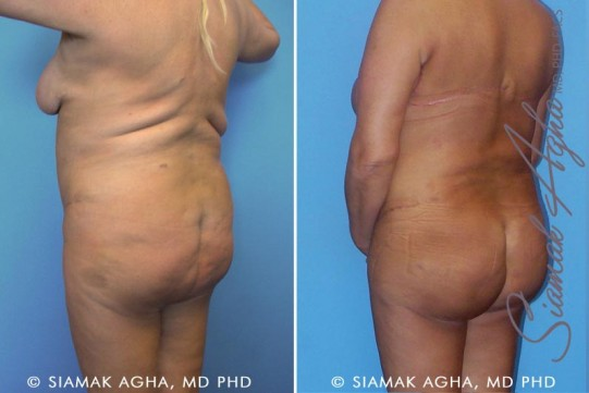 orange-county-tummy-tuck-revision-patient-3-back-left