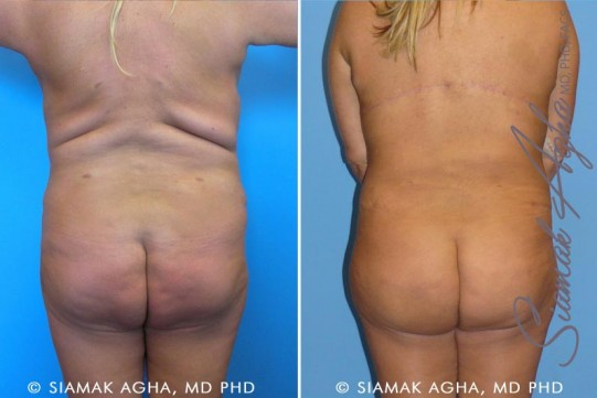 orange-county-tummy-tuck-revision-patient-3-back