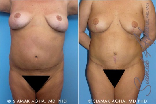 orange-county-tummy-tuck-revision-patient-3-front