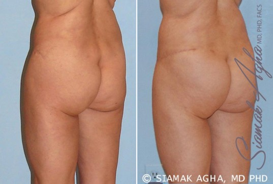 orange-county-tummy-tuck-revision-patient-4-back-left