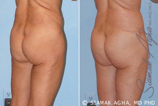 orange-county-tummy-tuck-revision-patient-4-back-right