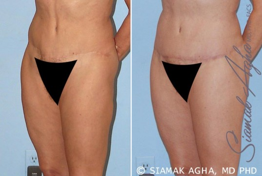 orange-county-tummy-tuck-revision-patient-4-front-left