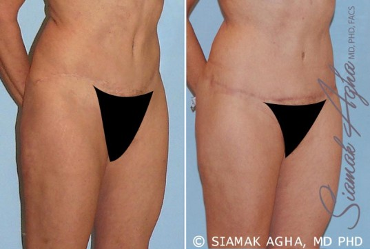 orange-county-tummy-tuck-revision-patient-4-front-right