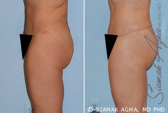 orange-county-tummy-tuck-revision-patient-4-left