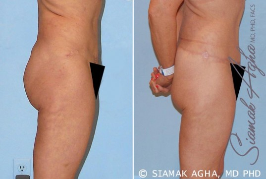 orange-county-tummy-tuck-revision-patient-4-right