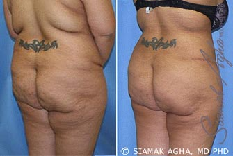 orange-county-tummy-tuck-revision-patient-5-back-right