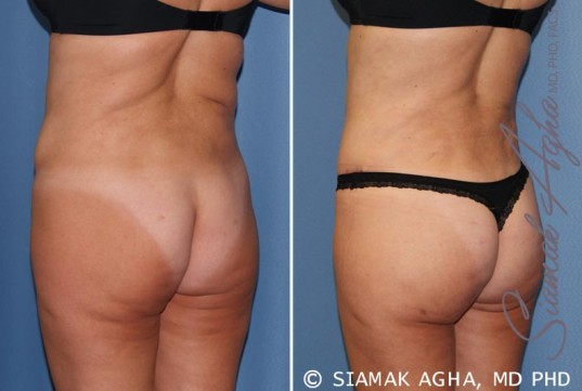 orange-county-tummy-tuck-revision-patient-7-back-left