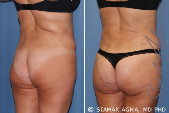 orange-county-tummy-tuck-revision-patient-7-back-right