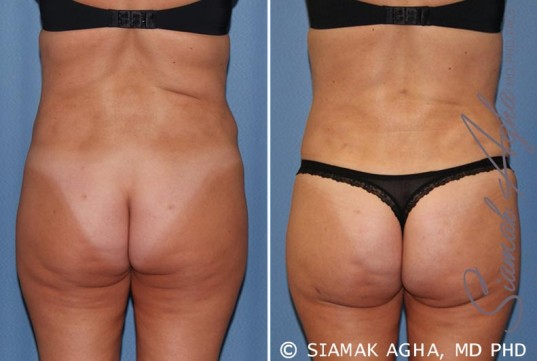 orange-county-tummy-tuck-revision-patient-7-back