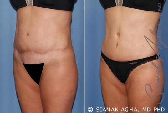 orange-county-tummy-tuck-revision-patient-7-front-left