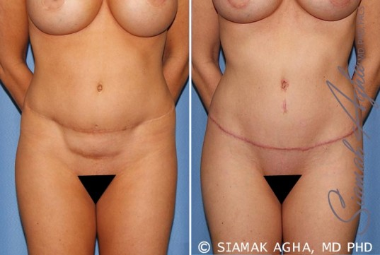 orange-county-tummy-tuck-revision-patient-8-front-1