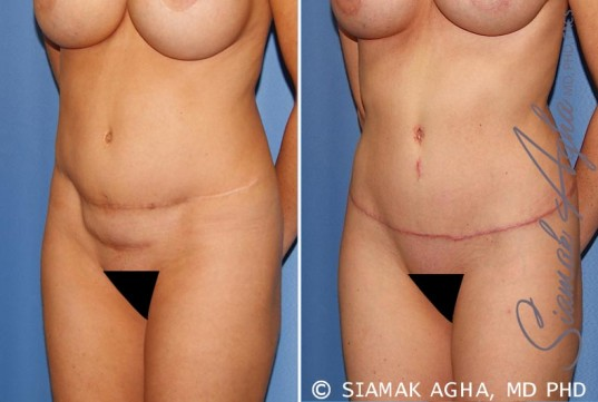 orange-county-tummy-tuck-revision-patient-8-front-left