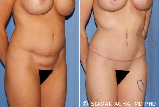 orange-county-tummy-tuck-revision-patient-8-front-right