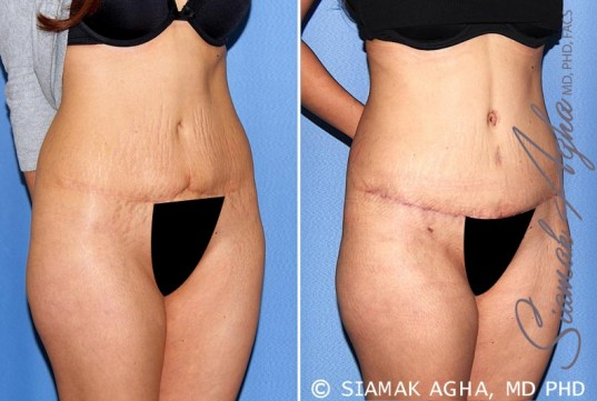 orange-county-tummy-tuck-revision-patient-9-front-right