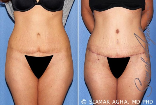 orange-county-tummy-tuck-revision-patient-9-front