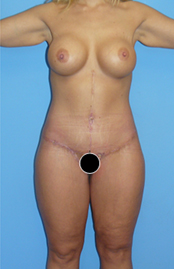 abdom-03
