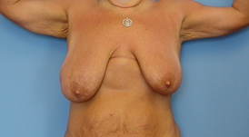 breast-reshaping-022